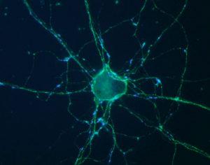 """neuron"" - 1"